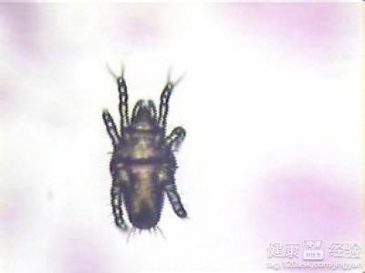 阴虱叮咬人体表面的皮肤进而所引起的患处瘙痒的症状