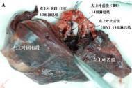 小细泡肺癌初期转移想请教一下该怎么治疗