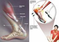 脚内踝骨裂姆子曲肌腱断裂怎么办