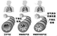 支气管哮喘如何治疗