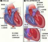 非梗阻性肥厚型心肌病一定要手术吗