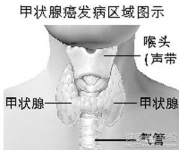 甲状腺癌淋巴结纵隔肺转移的治疗注意什么
