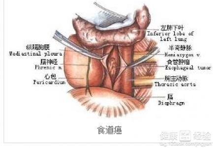 食管癌术后纵膈淋巴结转移了要怎么办啊