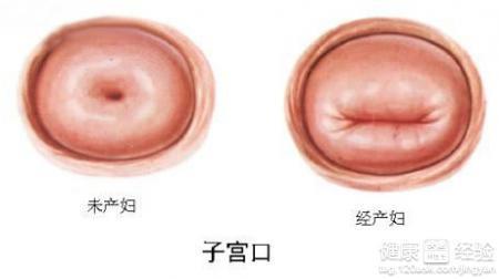 怎么治疗宫颈炎