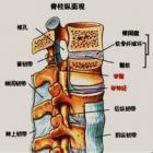 有颈椎病怎么办