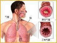 中医治疗哮喘的方法