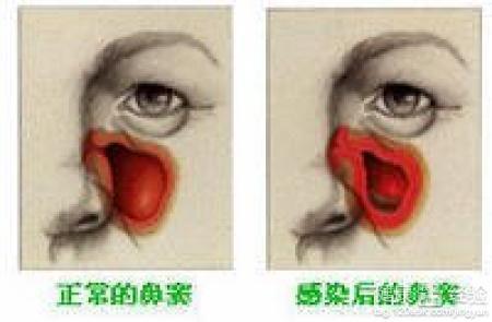 鼻窦炎怎么治_鼻窦炎的最好治疗方法是什么?