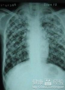 颈部淋巴结核手术费大概是多少呢