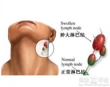 颈部淋巴结核如何治疗