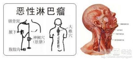 颈部淋巴结核偏方治疗有效果吗