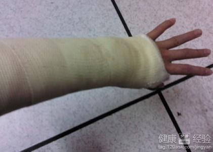 手腕骨折怎么办