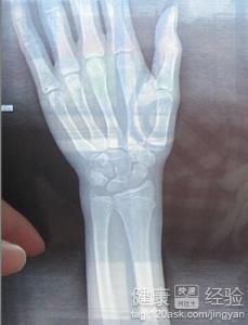 手腕骨折怎么治疗