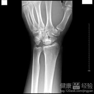 手腕骨折手肿几天消肿