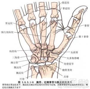 手腕关节骨折畸形愈合怎么办