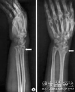 手腕骨折如何锻炼