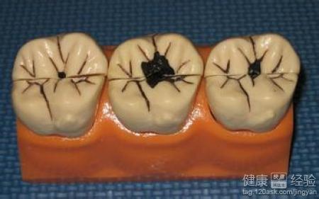 龋齿治疗注意事项