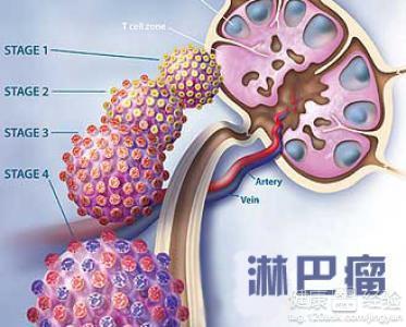 淋巴结突出症状有哪些