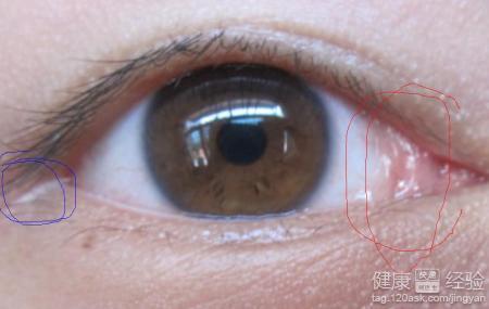 眼睛有干涩血丝怕光流泪吃什么药治疗