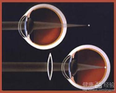 远视眼 远视/1远视眼患者在患上远视眼后,视力的变化一般情况下是比较缓慢...