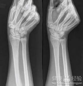 右手腕舟状骨骨折如何在家护理