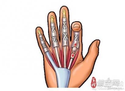 /方法:   手术治疗:在5倍手术放大镜下用改良Kessler缝合法缝合,用