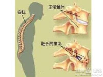 强直性脊柱炎的症状有很多,其中得了强直性脊柱炎的病人的腰或脊柱