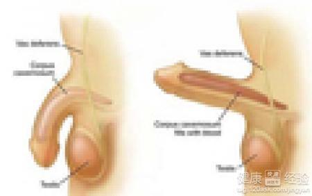 男性陰莖短小治療