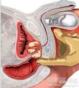 肛门插管治疗前列腺有用吗?前列腺炎怎么治