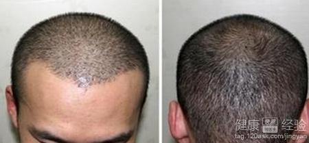植发后长头发过程