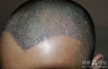 头部烫伤疤植发