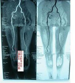 肢动脉栓塞需要截肢吗