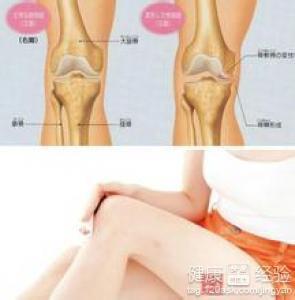 膝关节半月板损伤饮食注意什么啊