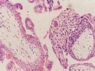 甲状腺瘤的进一步诊断