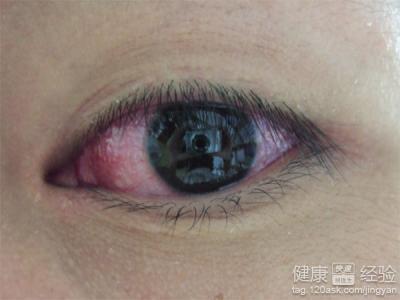 眼睛会出现什么症状
