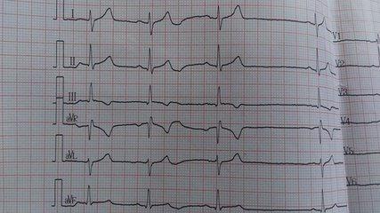 窦性心律不齐频发室性早搏怎么饮食