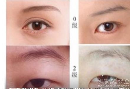 开双眼皮和眼角需要恢复多久可以恢复好