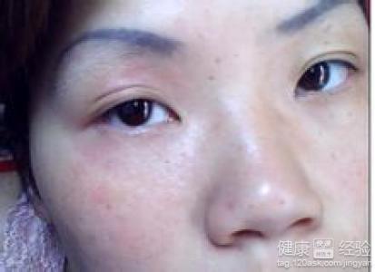 脸部皮肤薄怎么办_怎么会好好的过敏呢,我也很怕这个痘消不下去,想问问医生脸部皮肤过敏