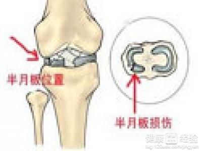 膝关节半月板损伤有什么症状