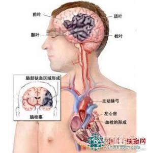 动障碍,失语等症状,会出现自主神经功能紊乱抑郁症.患者会时常担
