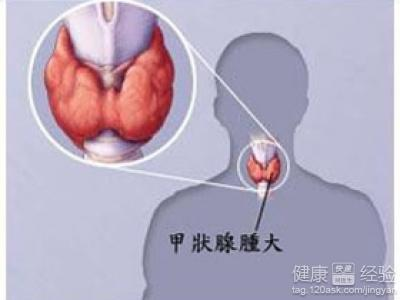 怎样治疗甲状腺瘤如何预防