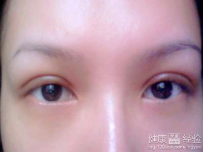 做双眼皮埋线会有后患吗