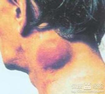 腹股沟淋巴结核和腹股沟淋巴癌有哪些区别
