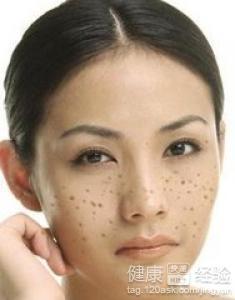 女生脸上长有雀斑怎么治疗好
