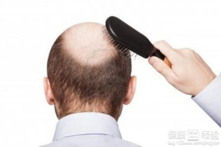 怎么样防止脱发_如何防止脱发
