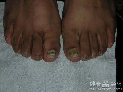 灰指甲治疗过程图片
