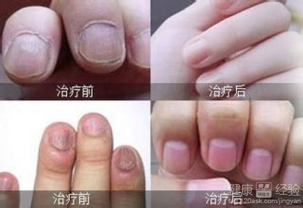 灰指甲治疗的过程图
