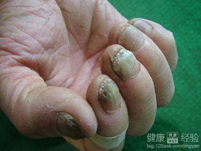 灰指甲的原理_灰指甲