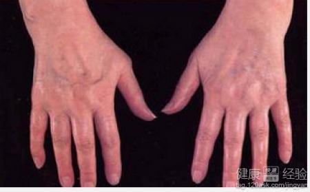 中医治疗类风湿性关节炎的三大方法