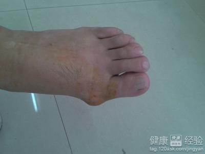 脚痛风的症状