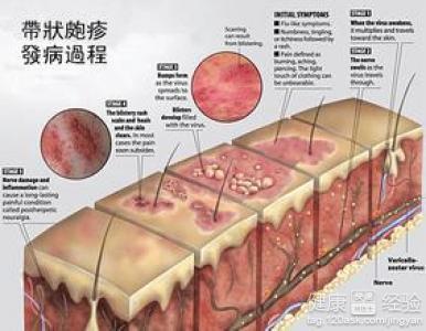 带状疱疹的治疗_带状疱疹如何治疗